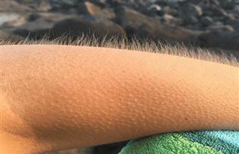 علماء: القشعريرة تجعل شعرك ينمو!