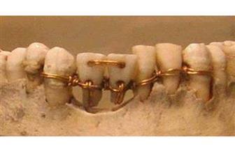 هل توصل الفراعنة لفرشاة الأسنان؟ | فيديو وصور