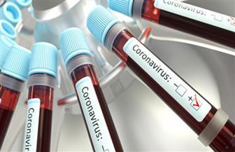 قنصلية مصر فى ملبورن تبرز منشور «الصحة» للمسافرين.. والتطعيم لا يمنع «Pcr»
