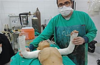 """كلية الطب بجامعة المنيا تجري عملية نادرة لطفل مصاب بـ""""العظام الزجاجي""""  صور"""