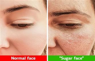 انتبهوا.. السكر يسبب شيخوخة مبكرة ويؤثر على صحة البشرة والشعر
