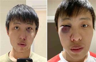 السفارة الفلبينية في واشنطن تنصح رعاياها بتوخي الحذر وسط موجة من الاعتداءات ضد الآسيويين