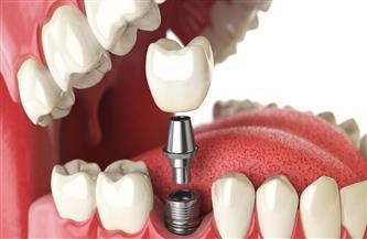إجراء 16 جراحة زرع أسنان ناجحة بالمنيرة العام