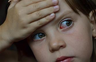 جفاف العين قد يكون علامة لمرض خطير