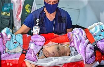 """وصول التوأم السيامي اليمني """"يوسف وياسين"""" إلى السعودية"""