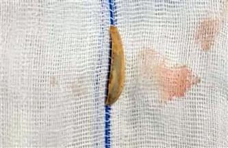 """استخراج """"قشرة لب"""" من القصبة الهوائية لرضيع بمستشفى بنها الجامعى بعد معاناة شهرين"""