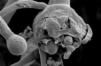 """""""الصحة"""": """"الفطر الأسود لا يمكن أن يتحول إلى وباء كونه لا ينتقل من إنسان لآخر"""""""