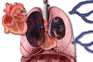 تعرف على أخطر أنواع جلطات الرئة التي يتعرض لها الإنسان
