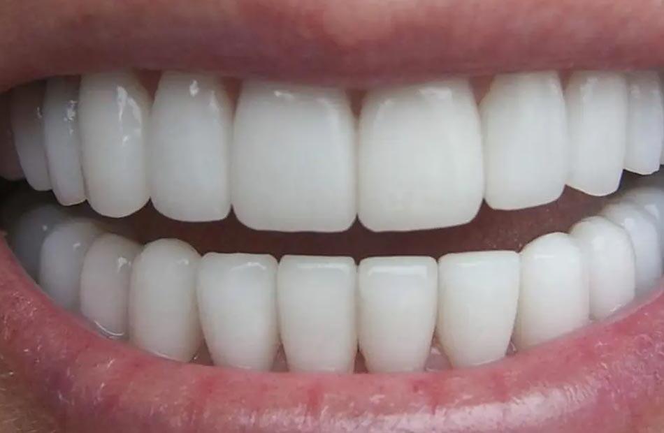 نقيب أطباء الأسنان يكشف تفاصيل لائحة الأسعار الاسترشادية وقانونية تطبيقها