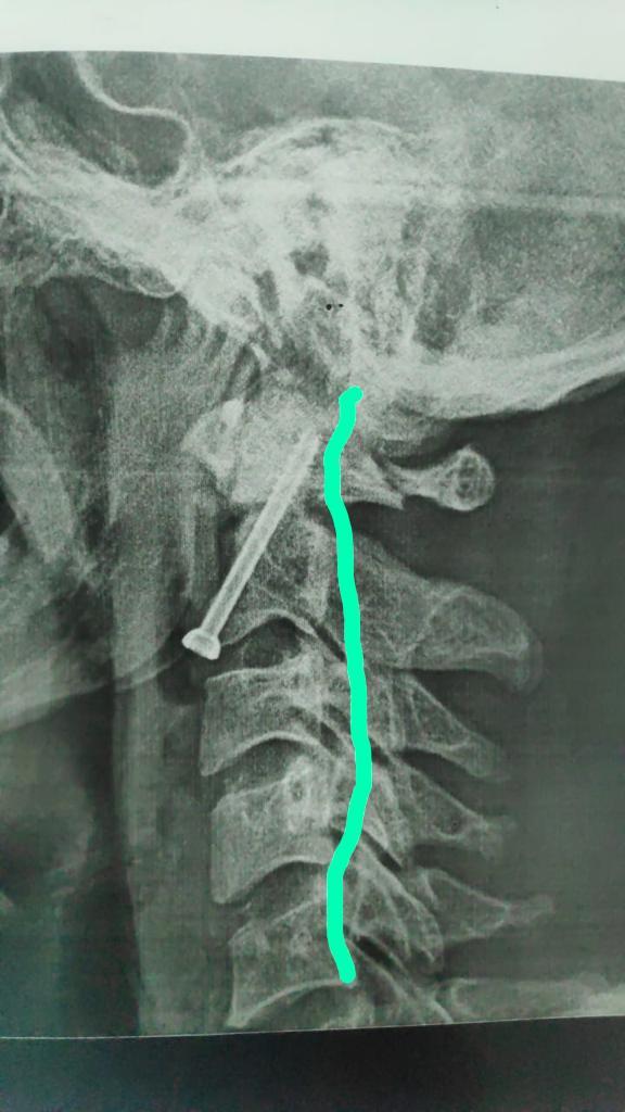 نجاح جراحة بالعمود الفقري لشاب بمستشفى سوهاج الجامعي بعد سقوطه من أعلى نخلة